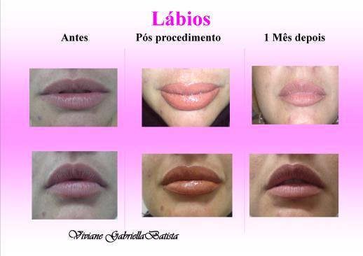Micropigmentação - Maquiagem Definitiva - Lábios